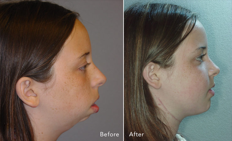 before-after-jaw-surgery