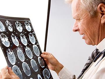 Neurology - TMC