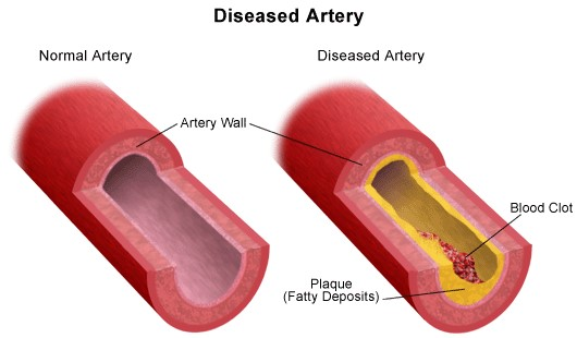 Diseased Artery