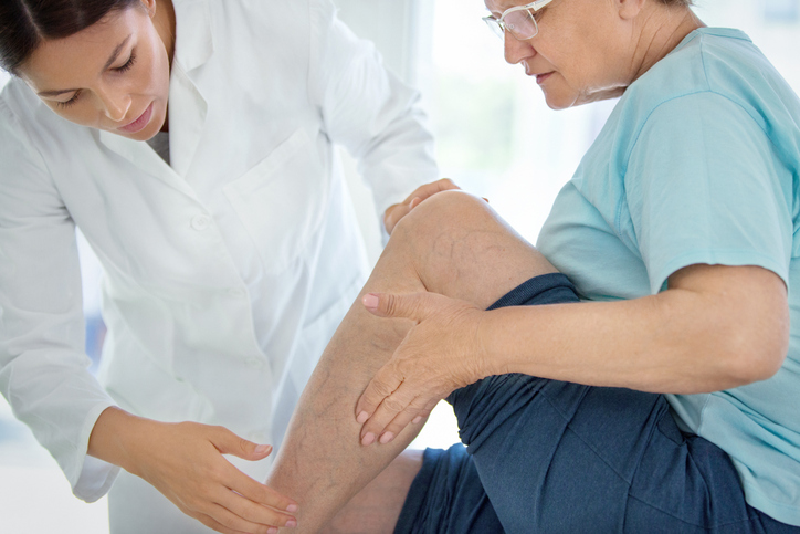 Diagnosis for Varicose Veins Treatment