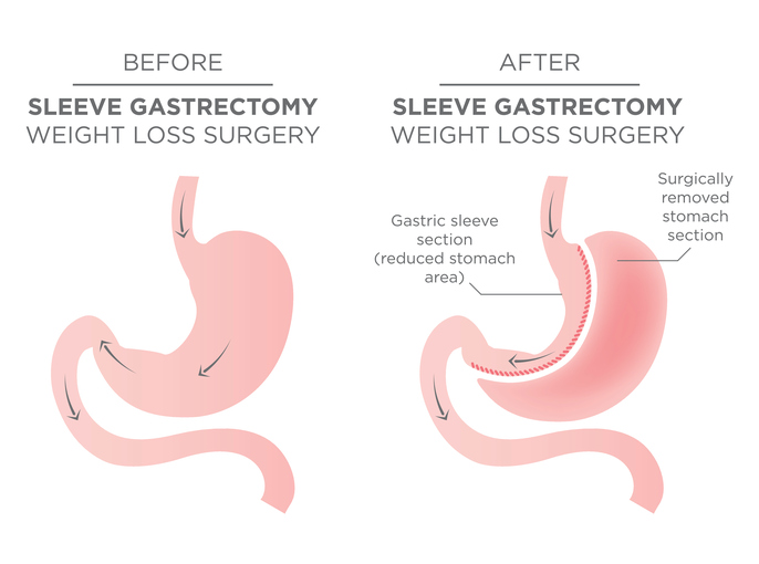 1/4 of the Stomach is Removed in this Bariatric Weight Loss Procedure or Surgery