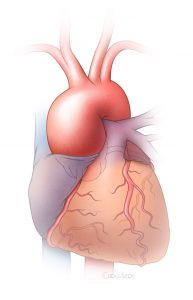 Aorta Root at Heart