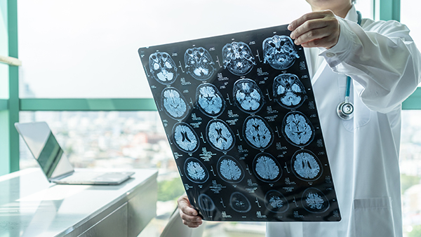 Grant to allow researchers to study how neurons work together in order to better understand neurological disorders such as Alzheimer's disease and autism spectrum disorders. (Photo by Getty Images)