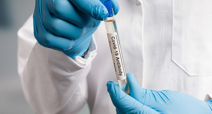 COVID-19 antibody test vial
