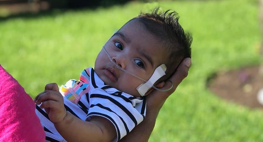 Eliana, diagnosed with CDH